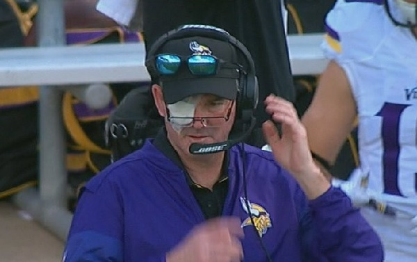 mike-zimmer-eyepatch.jpeg